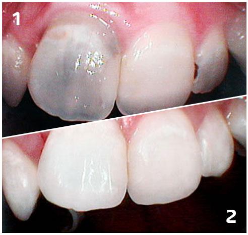 beljenje avitalnog zuba