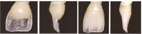 Izrada cervikalnog i incizalnog dela dentinskog jezgra iz dentinske boje kompozitnog materijala