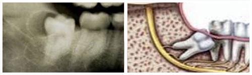 Impaktiran zub