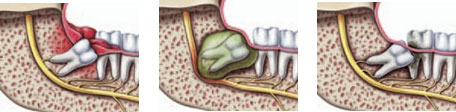 Impaktirani zubi 1