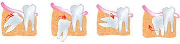 Neiznikao zub