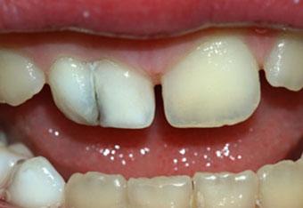 Fuzija zuba