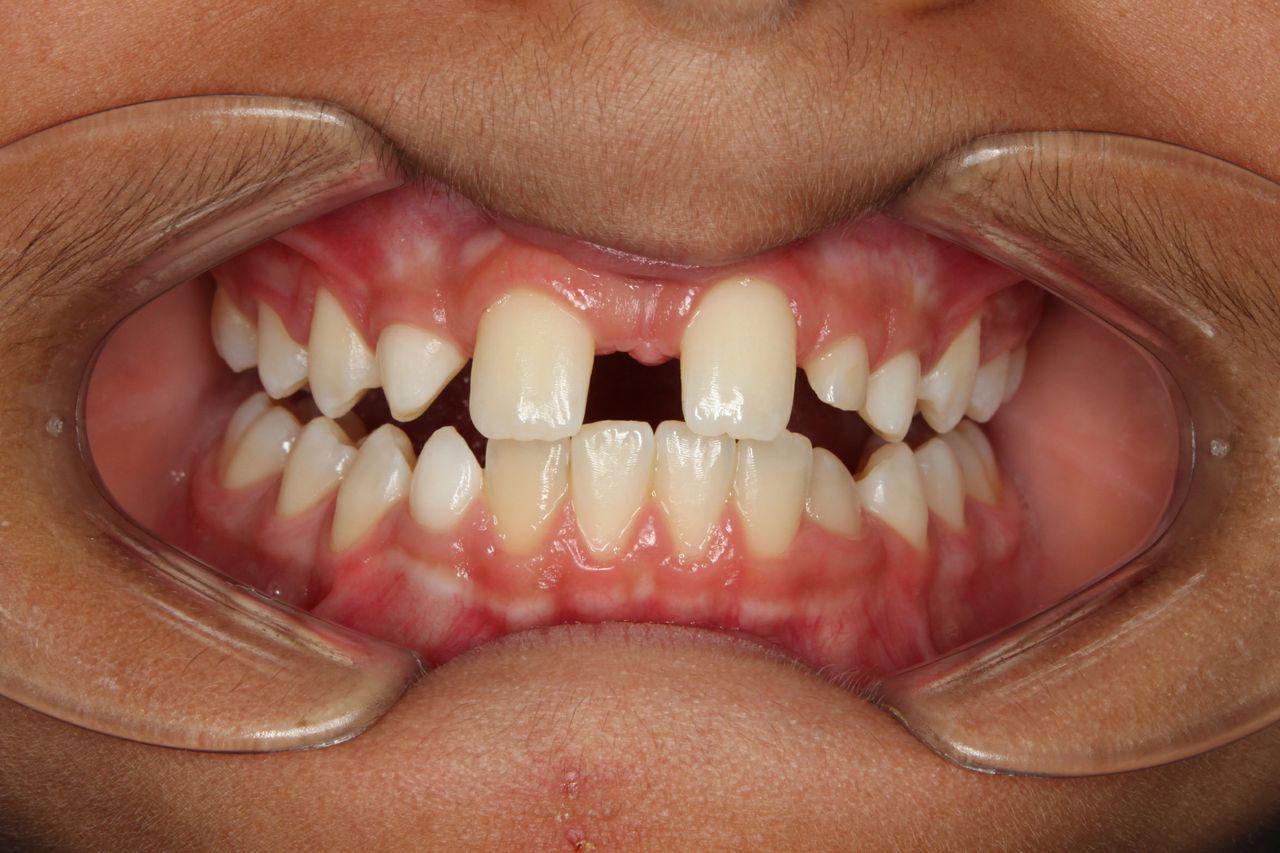 Nepravilnosti u broju zuba - hipodoncija