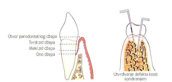 Defekti kosti usled parodontalnih džepova