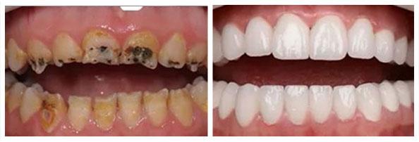 Deformitet strukture zuba