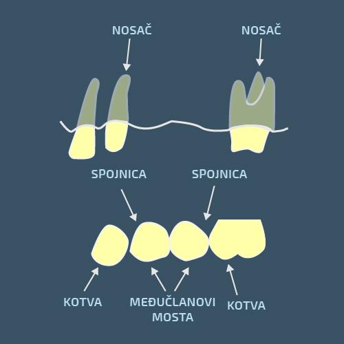 Delovi zubnog mosta