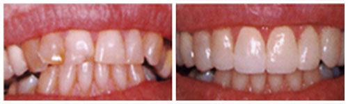 Endodontska prebojenost