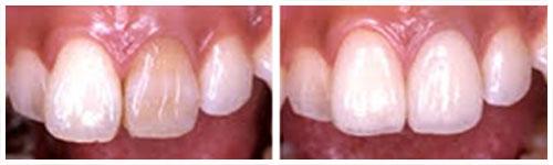 Endodontska prebojenost zuba  (levo),  gotova cementirana faseta (desno)