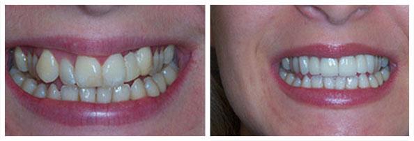 Malpozicije frontalnih zuba