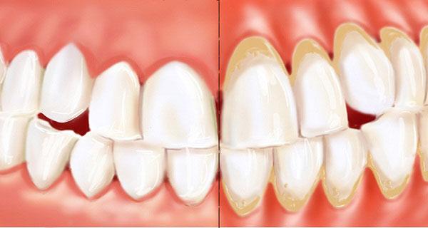 Parodontopatični zubi