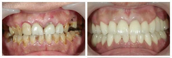 Rahitične promene na zubima