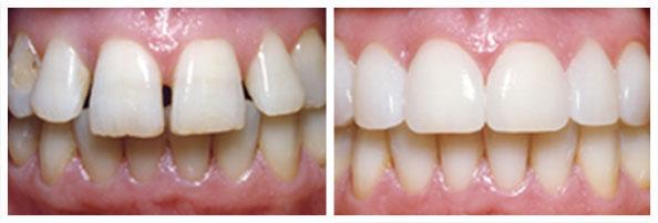 Rastresitost zubnog niza