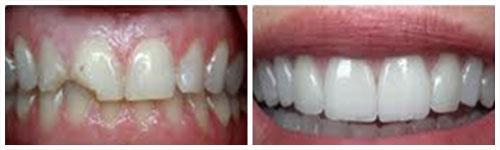 Fraktura ugla zuba (levo), cementirane fasete (desno)