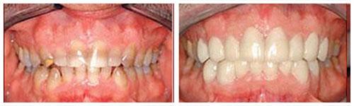 Tetraciklinska prebojenost zuba