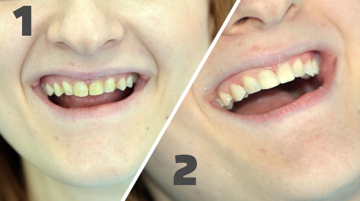 Korekcija oblika zuba fasetama