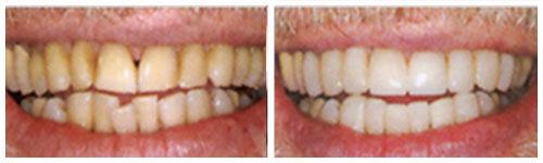 Žuti zubi i pušenje