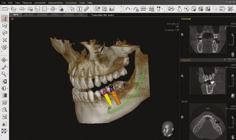 3D ortopan